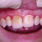 Periodontitisterápia még nagyobb