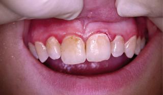 Periodontitisterápia még nagyobb teljesítménnyel