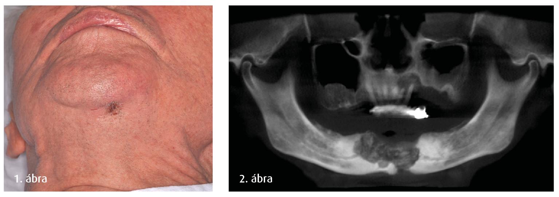 1. ábra: Preoperatív felvétel, extraoralis fistula látható a submentalis regióban. 2. ábra: Preoperatív CBCT-felvétel panorámaleképezésel, látható a sequestratio.
