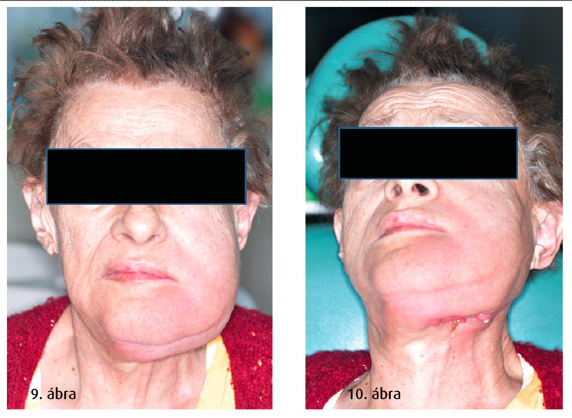 9. ábra: Preoperatív kép, nagyfokú duzzanat látható a mandibula mellett. 10. ábra: Multiplex extraoralis fistulák.