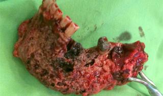 A biszfoszfonát okozta állcsontnekrózis súlyos esetei