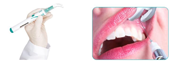 1. ábra: Dental VibeInjekció Komfort Rendszer. 2. ábra: Infiltrációs érzéstelenítés.