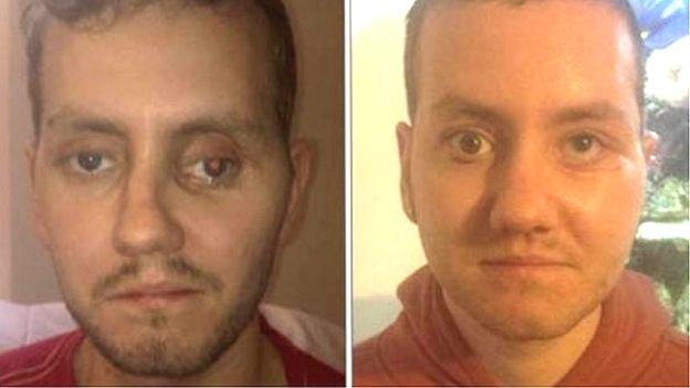 3D-nyomtatással állították vissza egy férfi sérült arcát