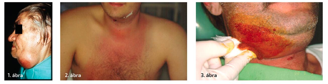 1. ábra: Bal oldalon peri- és submandibularis abscessus klinikai képe. 2. ábra: Phlegmone típusos bőrtünete. A folyamat gyorsan terjed tovább lap szerint. 3. ábra: Abscessus  megnyitása – izolálás.