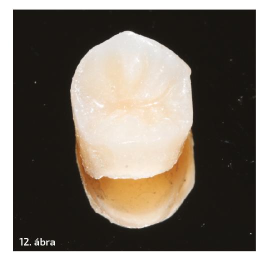 Sérült szerkezetű második premoláris újbóli gyökérkezelése és adhéziós restaurációja