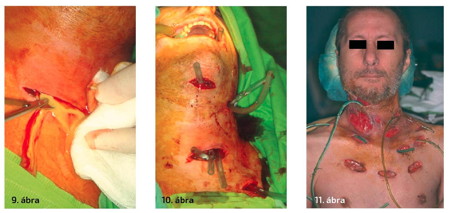 """9. ábra: Phlegmone kezelése – incisio után hígan folyó genny ürül. 10. ábra: Phlegmone kezelése – többszöri incisio és az incisiós nyílások összekötése szükséges. 11. ábra: Súlyos phlegmone, a bőr kiterjedten érintett, a későbbiekben nagy területen nekrotizált. Látható a többszöri megnyitás, a szövetek alapos """"szellőztetése"""". (1–11. ábra: Semmelweis Egyetem Arc- Állcsont- Szájsebészeti és Fogászati Klinika anyagából)"""