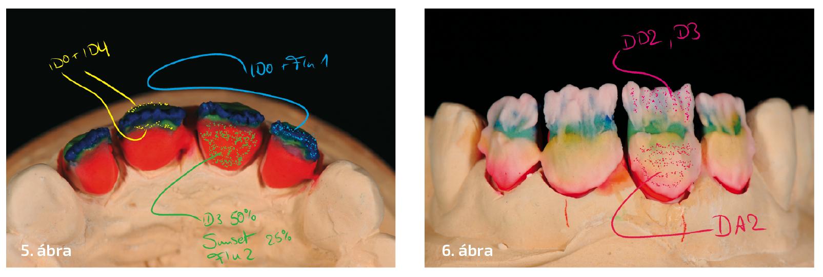 5. ábra: Már ennél a lépésnél nagy figyelmet kell fordítani az incizális csavarodásra. 6. ábra: D2 és D3 dentin váltakozó rétegzésével támogatjuk az incizális transzlucenciát.