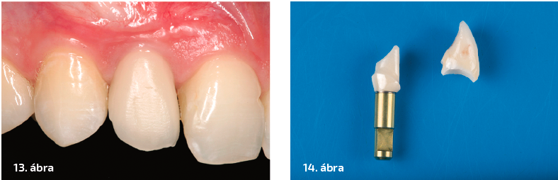 13. ábra: Nyerspróba. 14. ábra: Egyedi felépítmény és implantátum-korona Lava Plusból.