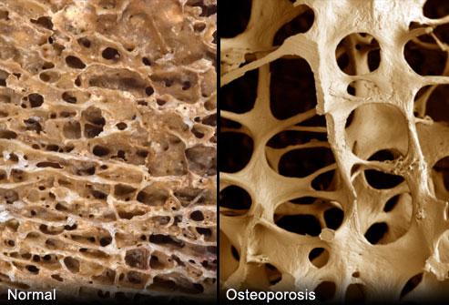 Csontokon is segíthet a fogfehérje