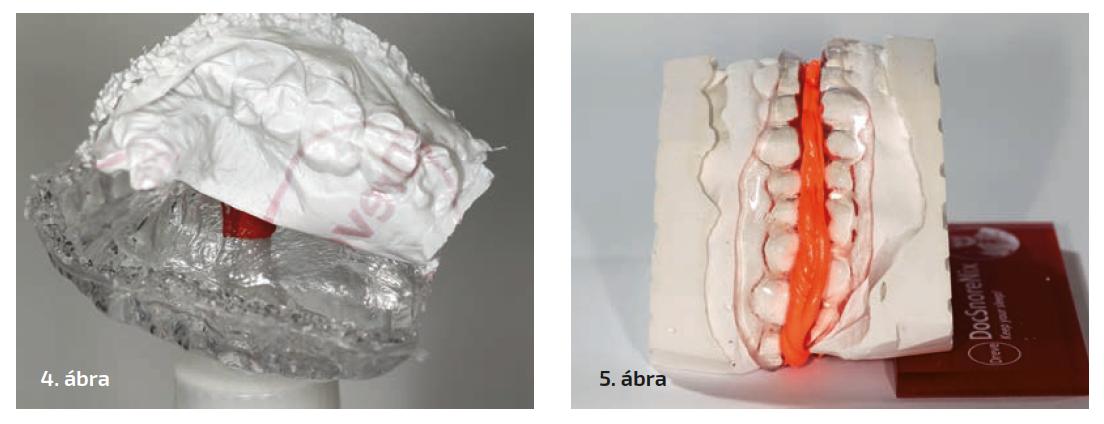 4. ábra: Az alátétfóliát lehúzzuk, így a sín nyálkahártya felőli felszíne sima. 5. ábra: Az alátétlemezre helyezett alsó minta 6 mm-es protrúzióban; a szilikonkulcs rögzíti a készüléket.