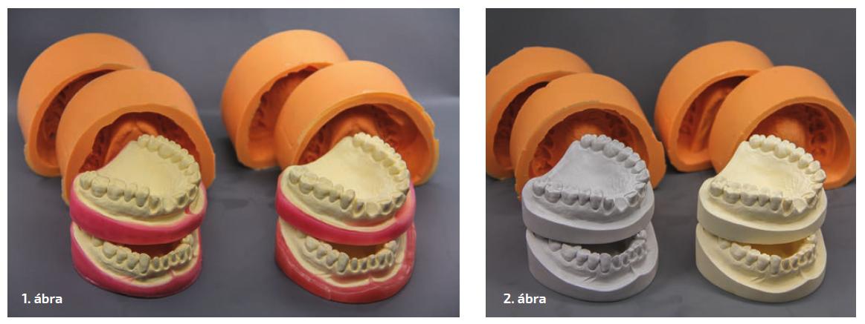 1. ábra: Talpkiegészítés és síkkiegyenlítés viaszlapokkal. 2. ábra: A bázisminták gipszből (balra) és műanyagból (jobbra).