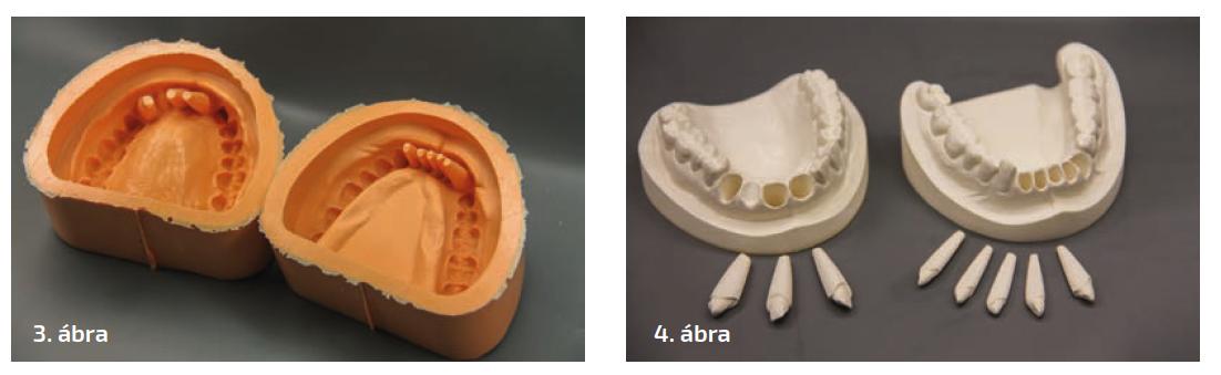 3. ábra: A minták dublírformája helyfenntartókkal a csonkokhoz. 4. ábra: A minták az üregekkel és a hozzájuk tartozó csonkokkal.