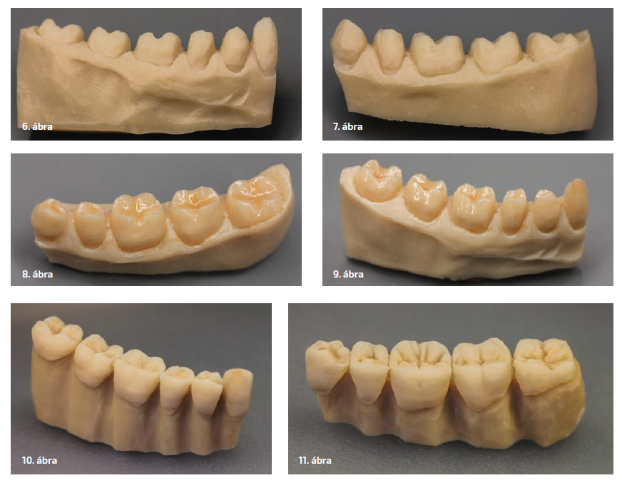 6–7. ábra: A fogakat redukáljuk… 8–9. ábra: …és színezzük. 10–11. ábra: A fogak élmasszával kiegészítve; az íny redukálva.