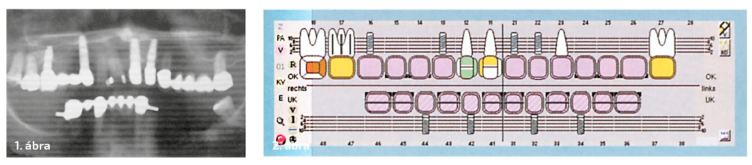 1. ábra: A kiindulási helyzet. 2. ábra: A terv – csavarrögzítésű híd négy interforaminális elhelyezésű implantátumra.