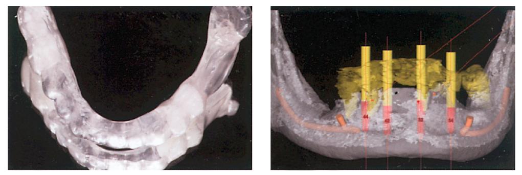 3. ábra: Laborkészítésű szkennelősablon. 4. ábra: Idealizált és párhuzamosított implantátumtervezés.
