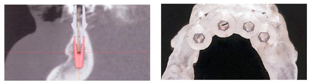 5. ábra: Implantátumtervezés virtuális felépítményekkel az ExpertEase tervezőszoftverrel. 6. ábra: Fogmegtámasztású fúrósablon.