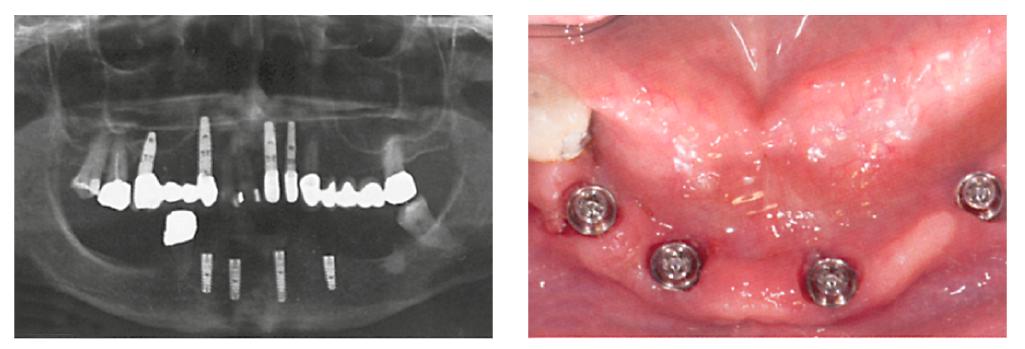 9. ábra: Az implantátumok röntgenképe. 10. ábra: A végleges, ANKYLOS Balance keskeny bázisfelépítmények behelyezése a CAD/CAM-protetikához.