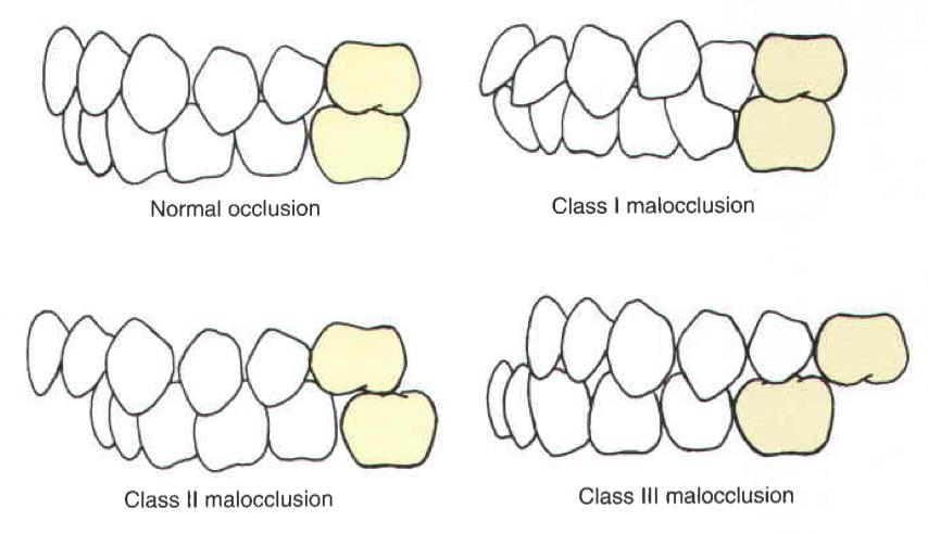 Funkcionális szemlélet a fogszabályozásban