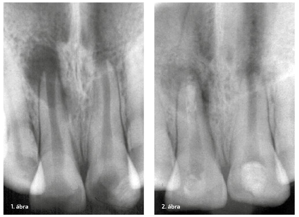 1. ábra: A röntgenvizsgálat a pulpális szövet érintettségét mutatta, és a fogászati traumának köszönhetően periapicális elváltozás is jelen volt. 2. ábra: Az első kísérlet az MTA behelyezésére a jobb felső középső metszőfogba (1.1-es fog).