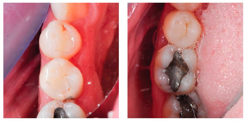 A kiindulási helyzet. A két kép ugyanannak a páciensnek a 35. és 36. fogát mutatja. A két restauráció nem egy időben történt,  így a képek párhuzamosan futnak egymás mellett, és mutatják az aktuális kezelési fázisokat.