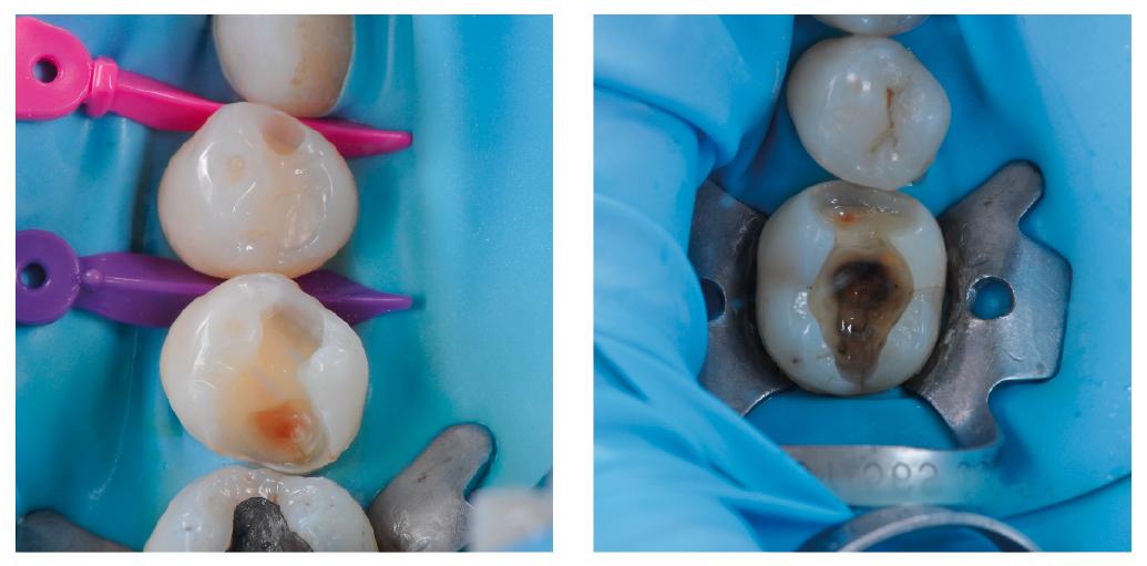 Az üregek tisztítás és bondozás után. Cariesindikátor használata után úgy döntöttem, hogy az elszíneződött dentint nem szükséges eltávolítani.