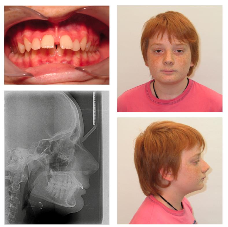 1–8. ábrák: Kezdő fotók és röntgenek.