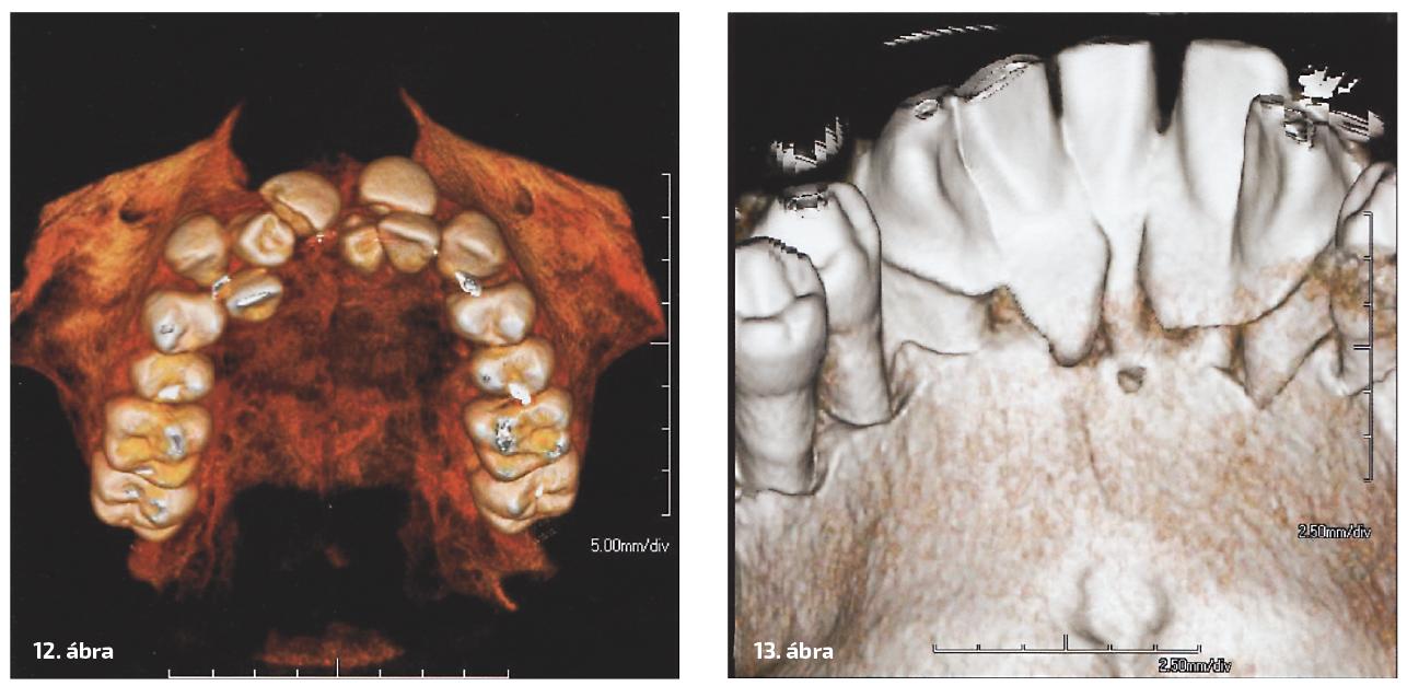 12. ábra: A háromdimenziós képen a számfeletti fogakat és azok pozicióját láthatjuk. 13. ábra: A háromdimenziós képen parodontális defektusokat és fogkőhidakat láthatunk.