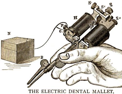 Mágneses kalapács – új eljárás alkalmazása az implantológiában