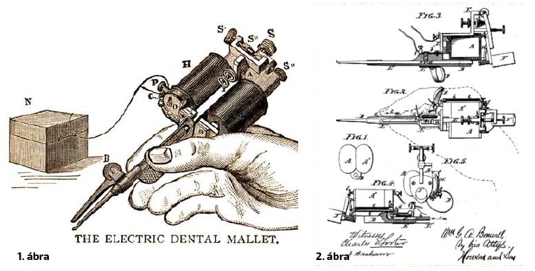 1. ábra: Bonwill elektromágneses kalapácsa 2. ábra: A kalapált aranytöméshez használt eszköz korabeli rajzon