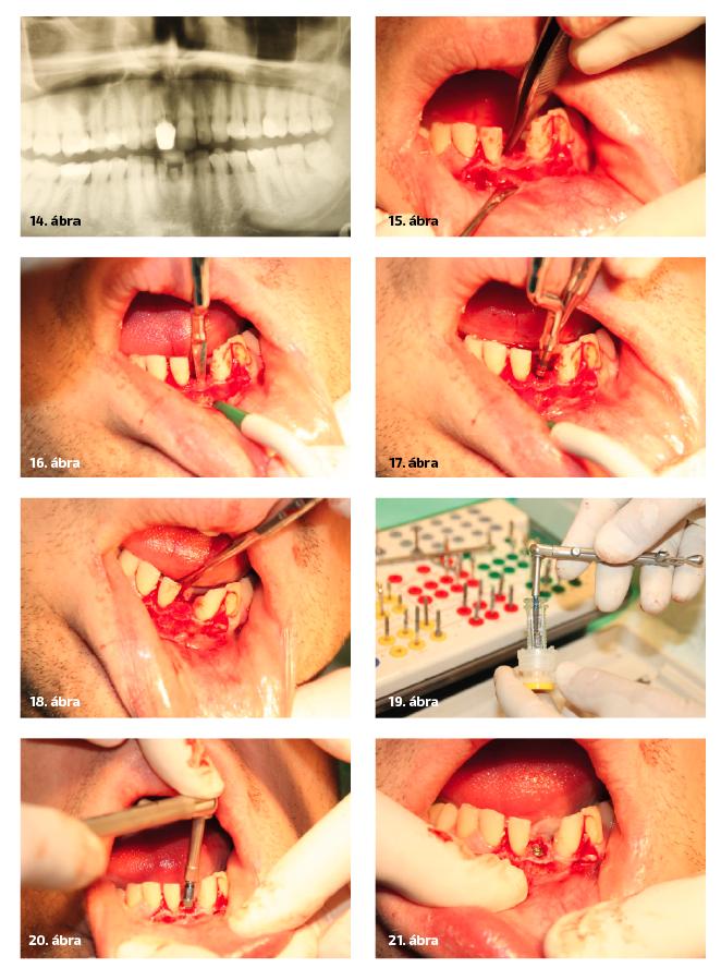 14. ábra: 31 éves férfi beteg perzisztáló alsó tej metszőfoga. 15. ábra: A tejfog helyén az állcsontgerinc 4 mm széles. 16. ábra: Hasítás, a gerinc kettéválasztása MM vésővel. 17. ábra: Implantátumágy kialakítása MM implantátumtágítóval. 18. ábra: Az implantátumágy kialakítása után az állcsontgerinc 7 mm-re tágítva. 19. ábra: Straumann gyökérformájú SLActive felszínű BL implantátum. 20. ábra: Straumann SLActive gyökérforma implantátum behelyezése. 21. ábra: A behelyezett implantátum a több mint 7 mm széles hasított és tágított gerincen.