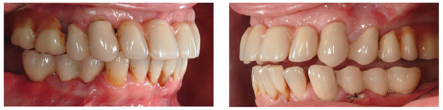 3–4. ábra: A felső kivehető kombinált fogsor oldalképe.