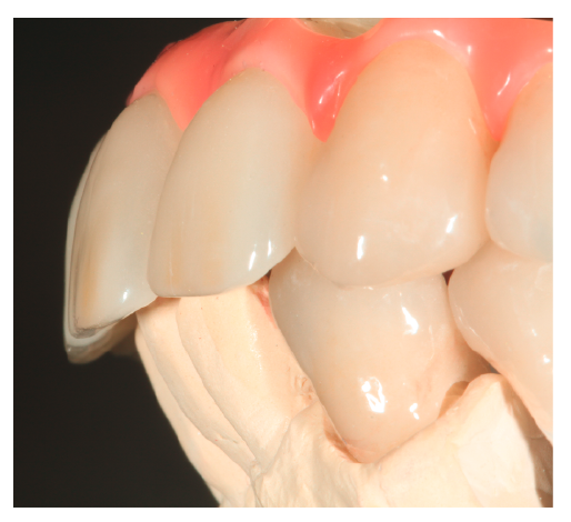30–32. ábrák: A gingiva kialakítása nagy kihívás a beragasztáshoz.