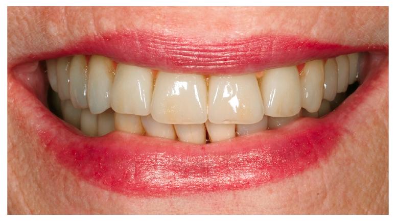 37. ábra: Esztétikus dentofaciális egység.