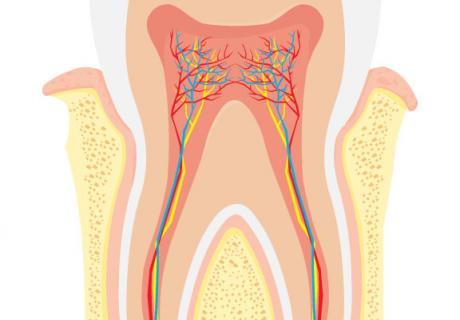 Az új, biokompatibilis anyag újjáépíti a fogzománcot, és csökkenti a fog érzékenységét