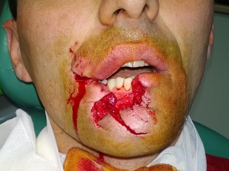 Kutyaharapás okozta kiterjedt szövethiánnyal járó sérülések a maxillofacialis régióban