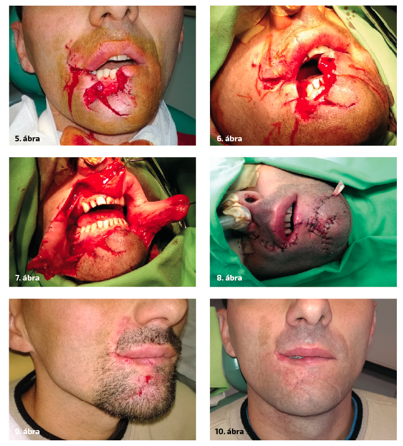 5. ábra: A páciens klinikánkra érkezésekor. Az alsó ajak a középvonaltól majdnem a szájzugig hiányzik 6. ábra: Műtét közben látható a kimetszés vonala, valamint a szövetek mobilizálásának iránya. 7. ábra: A segédmetszések, valamint a megfelelő területek kimetszése utáni állapot.  8. ábra: A sebet gumidrain felett per primam zártuk. 9. ábra: Varratszedés után, az esztétikai eredmény kielégítő.  10. ábra: Egy évvel a műtétet követően az alsó ajak teltsége a rekonstruált területen kisebb, de az eredménnyel a páciens elégedett.