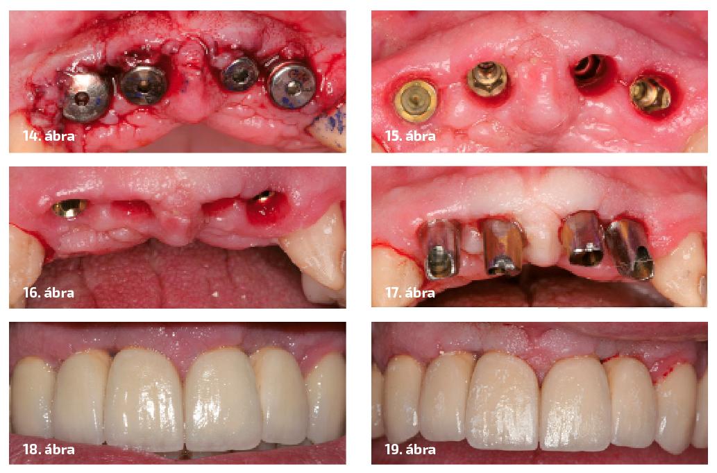 14. ábra: Implantátumok felszabadítása és gyógyulási csavarok behelyezése. 15. ábra: Három héttel a felszabadítás utáni állapot. 16. ábra: A gyógyulási csavarok által formázott papillák. 17. ábra: A végleges felépítmények próbája. 18. ábra: A végleges fogmű. 19. ábra: A papillák formája a végleges pótlás átadása után három hónappal.