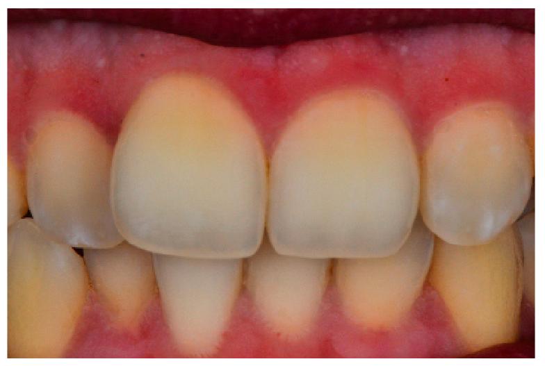 3. ábra: A felső középső metszőkön 3 mamelon figyelhető meg (opalescence type 1), borostyán halo-val (characterisation type 3), a felső laterális metszőkön hypomineralizációs foltok ( Intensive type 1).
