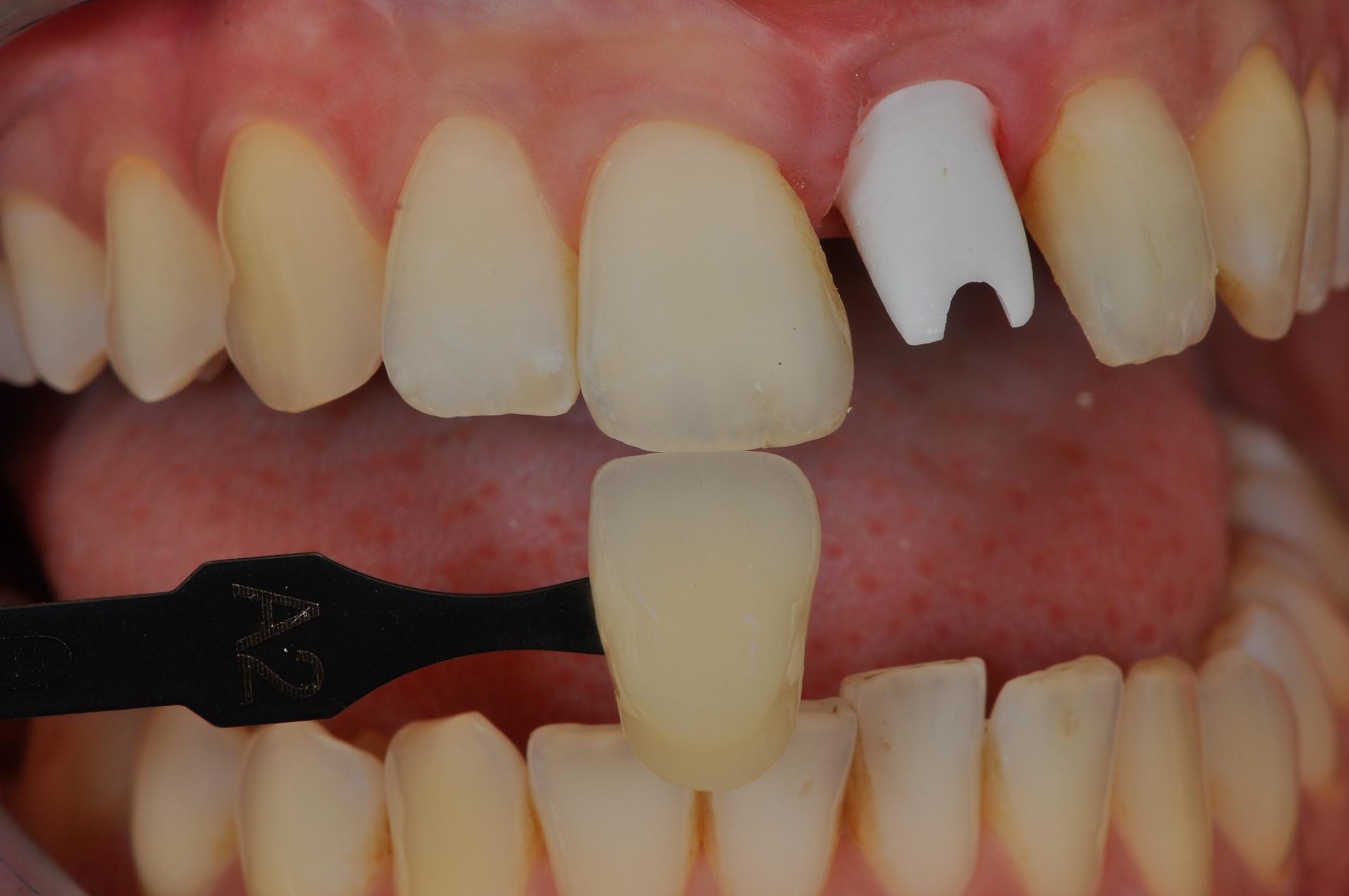Reflektív keresztpolarizációs technika a fogászati fotográfiában
