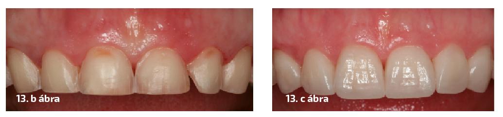 13. a–c ábrák: A fogak összehasonlítása a kezelés előtt és után.