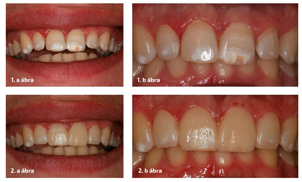 1. ESET 1. a–b ábrák: A fogak megjelenése mosolygás közben, és a fogak záródása preparálás előtt. Látható a fluorosis okozta zománcelszíneződése. 2. a–b ábrák: A tervezett pótlások mock-upja elkészült a páciens szájában a wax-up alapján. A mosoly és az okklúzió ellenőrzése.