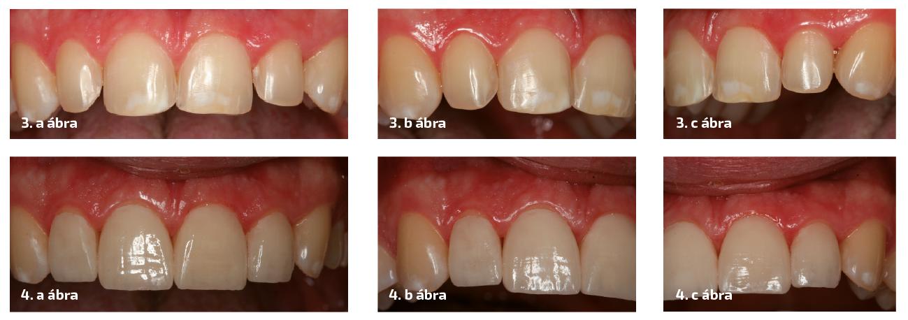 3. a–c ábrák: A 12-től 22-ig előkészített csonkok. Látható a minimál invazív preparáció a zománcban, és nincs chamfer vállas preparáció a gingivális területen. 4. a–c ábrák: A kész héjak behelyezés után, látható kerámiaárnyékot vetnek a 0,1-0,2 mm-es gingivális zónában.