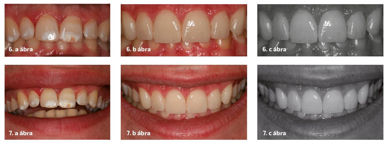 6. a–c ábrák: A fogak összehasonlítása kezelés előtt és után. A fekete-fehér fotók mutatják a héjak textúráját és felületétét. 7. a–c ábrák: A kezelés előtti és utáni esztétika. A héjak színének, alakjának és textúrájának tökéletes adaptációja a páciens természetes fogaihoz képest.