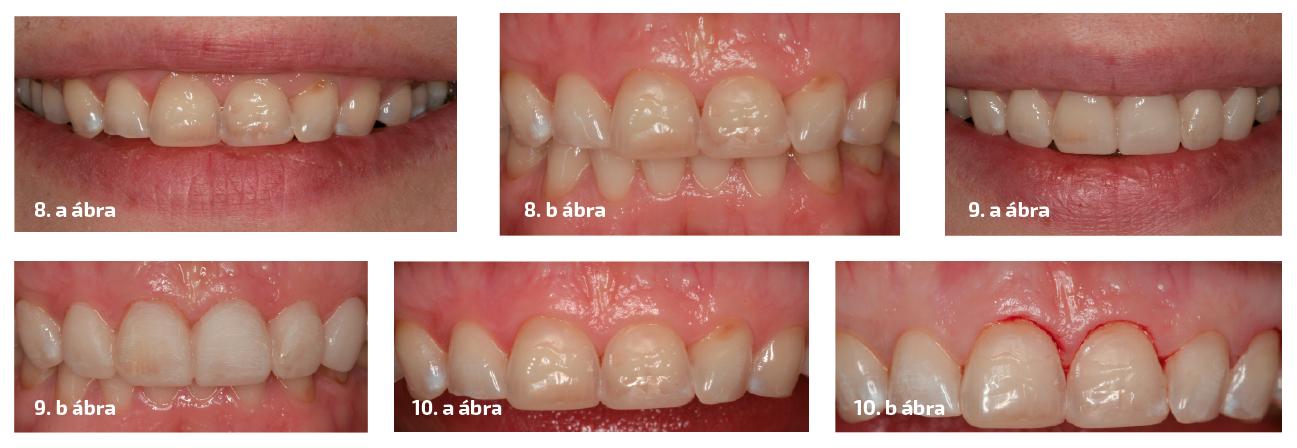 2. Eset 8. a–b ábrák: A felső metszőfogak megjelenése mosolygás közben és a csonkok záródása  a kezelés előtt. 9. a–b ábrák: A mock-up a páciens szájában.  A fogak megjelenésének ellenőrzése mosolygás közben és okklúzióban. 10. a–b ábrák: A gingiva marginális korrekciója.
