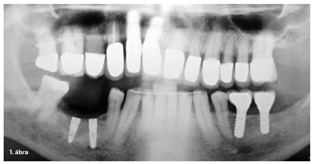 1. ábra: Panoráma felvétel a kiindulási állapotról. Figyeljük meg az implantátumok helyzetét és a nervus-alveolaris inferior közelségét!