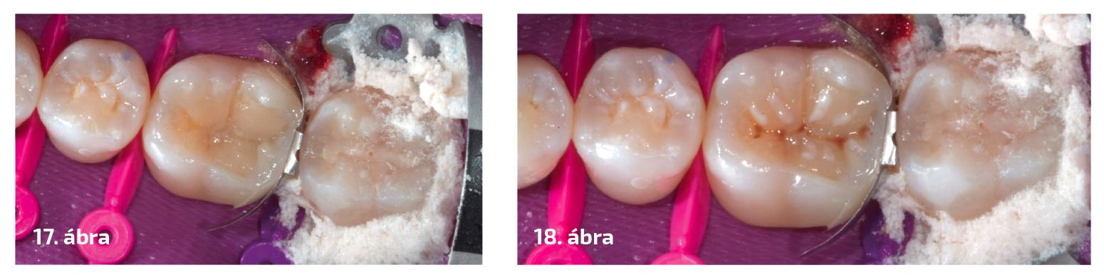 17. ábra: Dentinfelépítés.