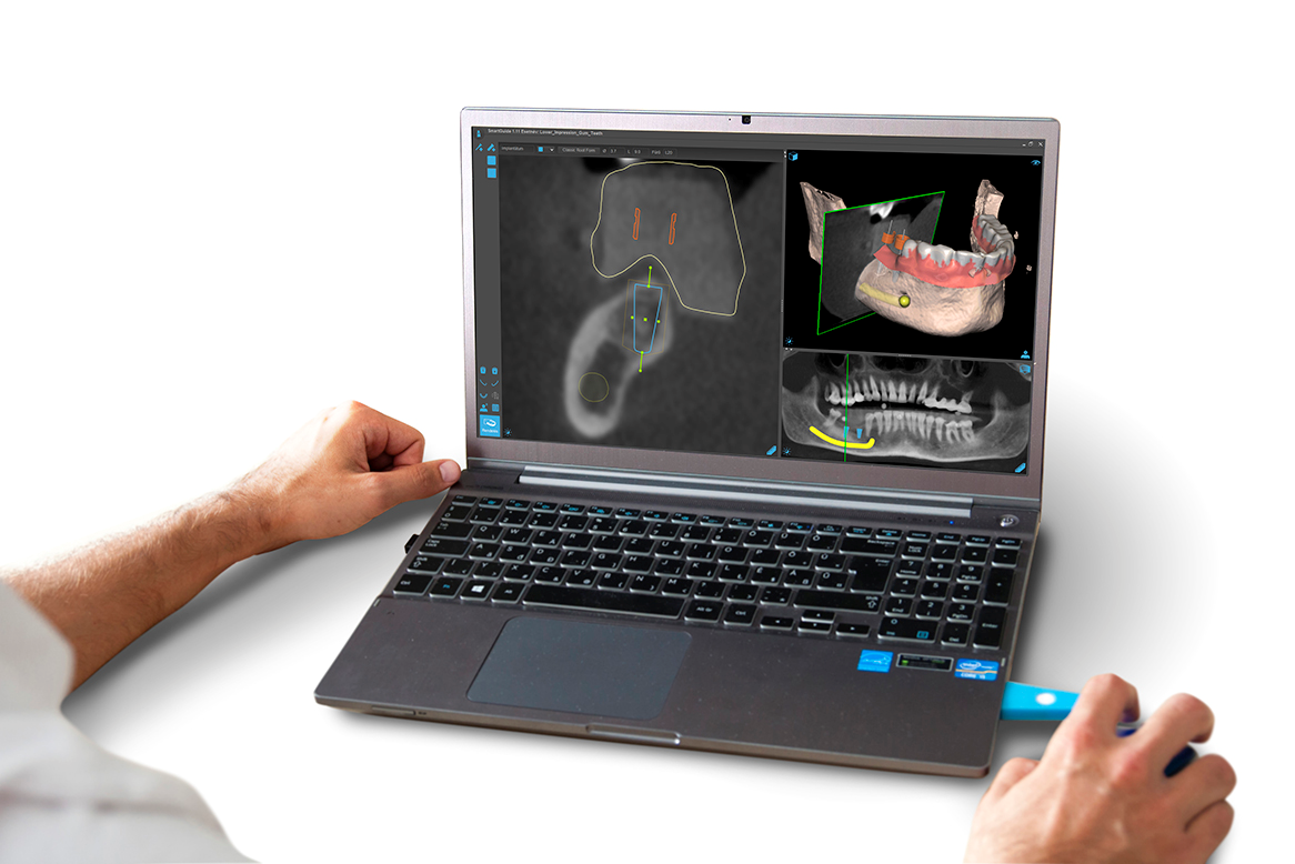 SMART Guide AKKREDITÁLT Kurzus – Navigáció a fogászati implantológiában