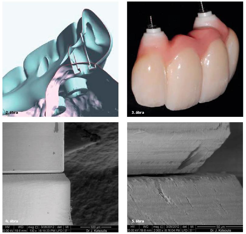 2. ábra: CAD/CAM rögzített pótlás vázának tervezése. 3. ábra: Implantátum szintre csavarozható teljeskerámia restauráció. 4–5. ábra: 50 μm-esnél is pontosabb széli záródás érhető el, akár körhidak esetén is.