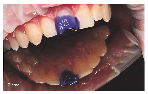 7. ábra: A fog teljes felületét 36%-os ortofoszforsavval kondicionáltuk.