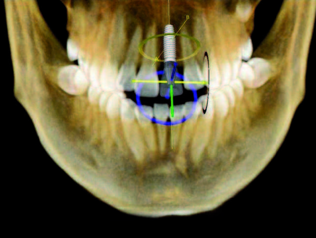 3D képalkotás: egyre pontosabb implantálás